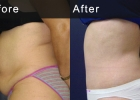 abdominoplasty2