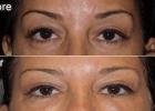 Blepharoplasty (Eyelid Rejuvenation)