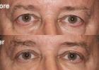 eyelid7