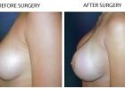 breast15