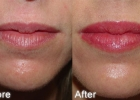lip-augmentation2