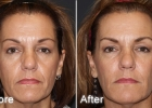 injectable-fillers4