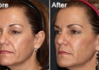 injectable-fillers5