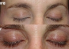 Latisse: Eyelash Enhancement