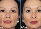 Obagi: Skin Rejuvenation