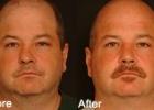 nasal-reconstruction1