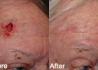 Skin Cancer Reconstruction